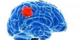 рак головного мозга лечение в Израиле
