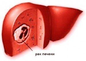рак печени лечение в Израиле