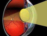Лечение катаракты в Израиле