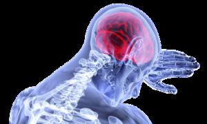 эпилепсия симптомы,лечение Медцентрим.Рабина,Израиль