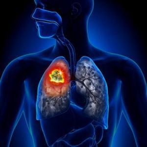 лечение рака легких в Израиле, Медцентр им. Рабина
