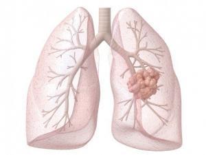 rak legkih