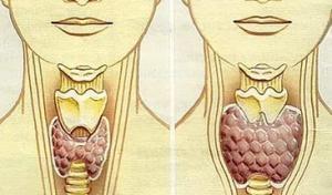 Рак щитовидной железы: лечение в Израиле, Онкоцентр Давидов
