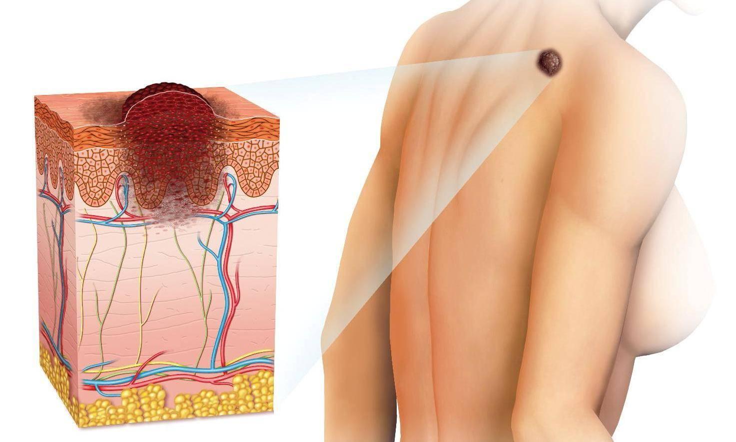 меланома лечение в Израиле,Медцентрим.Рабина