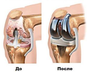 преимущества эндопротезирования суставов в Израиле