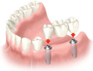 протезирование зубов в Израиле, Медцентр им. Рабина