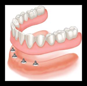 разновидности протезирования зубов в Израиле